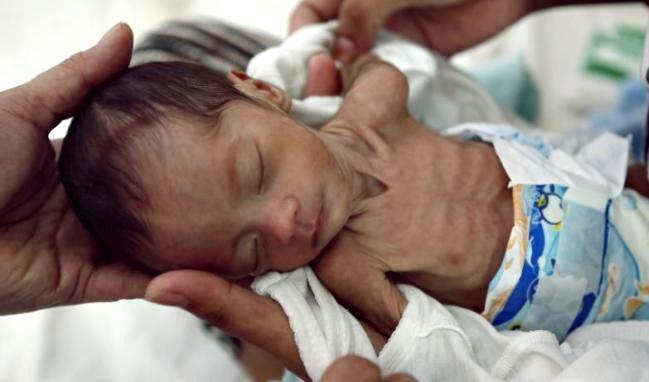 Kemendesa PDTT: 37 Persen Anak Indonesia Mengalami Stanting Dimasa Balita