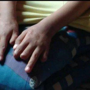 Tabung Gas Bocor di Serpong Ibu Dan Anak Tersambar Api