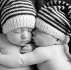 Orang Tua Bayi Kembar Siam Kesulitan Biaya Operasi Pemisahan Bayi Tersebut
